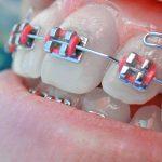 Beneficiile aparatelor dentare pe care probabil nu le cunosti